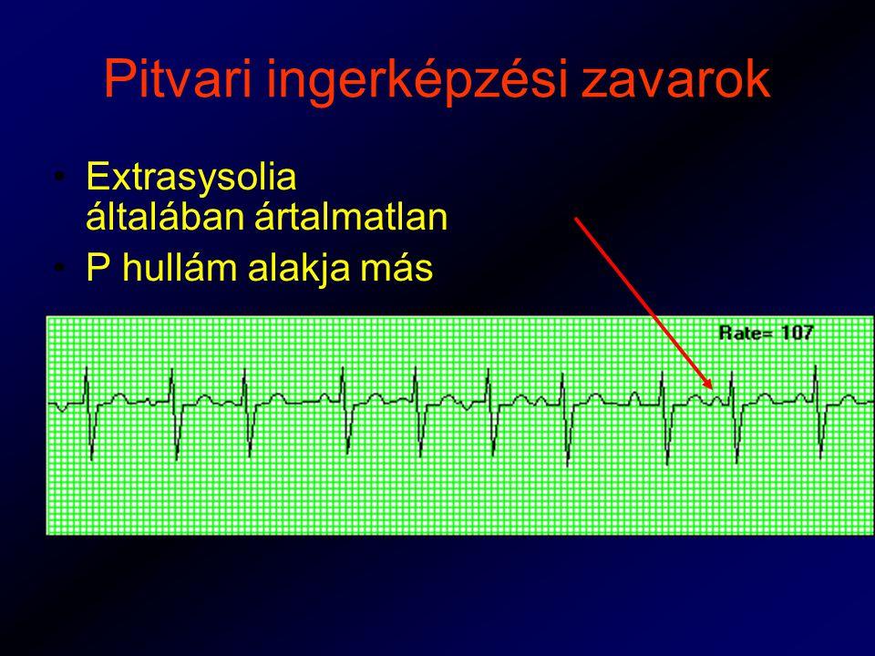 Pitvari ingerképzési zavarok Extrasysolia általában ártalmatlan P hullám alakja más