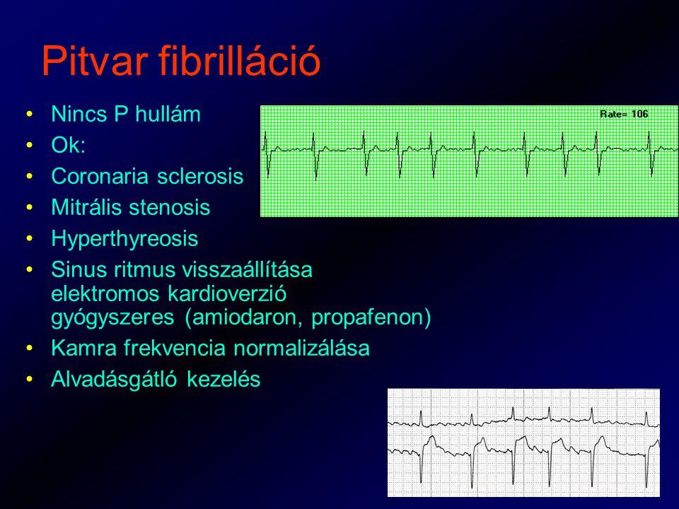 Pitvar fibrilláció Nincs P hullám Ok: Coronaria sclerosis Mitrális stenosis Hyperthyreosis Sinus ritmus visszaállítása elektromos kardioverzió gyógyszeres (amiodaron, propafenon) Kamra frekvencia normalizálása Alvadásgátló kezelés