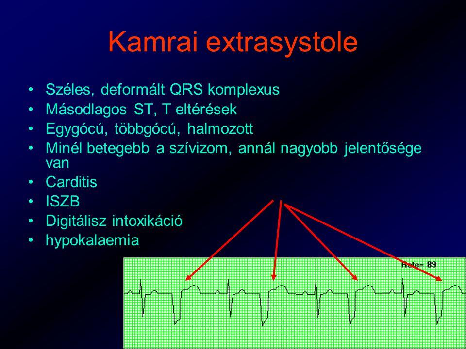 Kamrai extrasystole Széles, deformált QRS komplexus Másodlagos ST, T eltérések Egygócú, többgócú, halmozott Minél betegebb a szívizom, annál nagyobb jelentősége van Carditis ISZB Digitálisz intoxikáció hypokalaemia