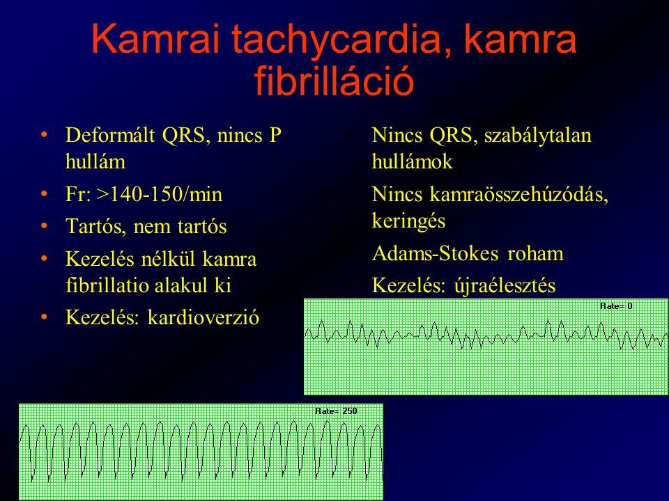Kamrai tachycardia, kamra fibrilláció Deformált QRS, nincs P hullám Fr: >140-150/min Tartós, nem tartós Kezelés nélkül kamra fibrillatio alakul ki Kezelés: kardioverzió Nincs QRS, szabálytalan hullámok Nincs kamraösszehúzódás, keringés Adams-Stokes roham Kezelés: újraélesztés