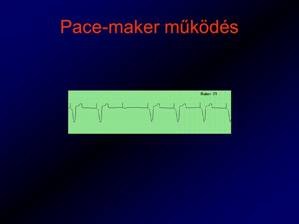 Pace-maker működés