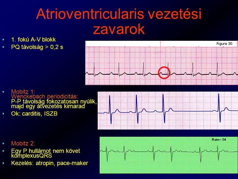 Atrioventricularis vezetési zavarok 1.