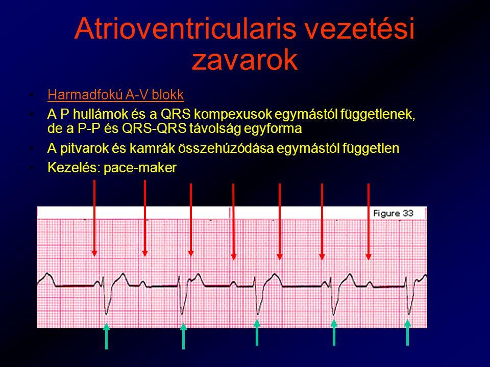 Atrioventricularis vezetési zavarok Harmadfokú A-V blokk A P hullámok és a QRS kompexusok egymástól függetlenek, de a P-P és QRS-QRS távolság egyforma A pitvarok és kamrák összehúzódása egymástól független Kezelés: pace-maker