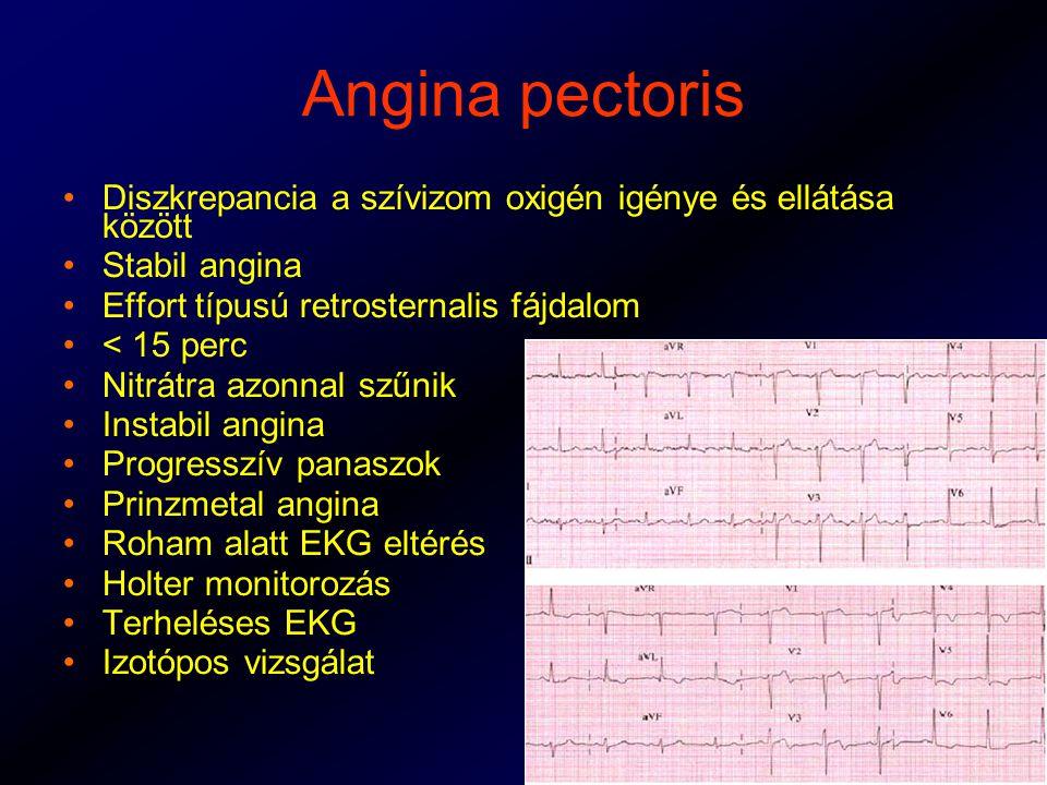 Angina pectoris Diszkrepancia a szívizom oxigén igénye és ellátása között Stabil angina Effort típusú retrosternalis fájdalom < 15 perc Nitrátra azonnal szűnik Instabil angina Progresszív panaszok Prinzmetal angina Roham alatt EKG eltérés Holter monitorozás Terheléses EKG Izotópos vizsgálat