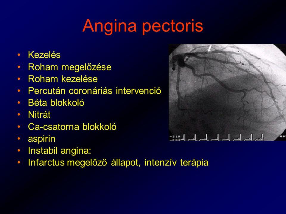 Angina pectoris Kezelés Roham megelőzése Roham kezelése Percután coronáriás intervenció Béta blokkoló Nitrát Ca-csatorna blokkoló aspirin Instabil angina: Infarctus megelőző állapot, intenzív terápia