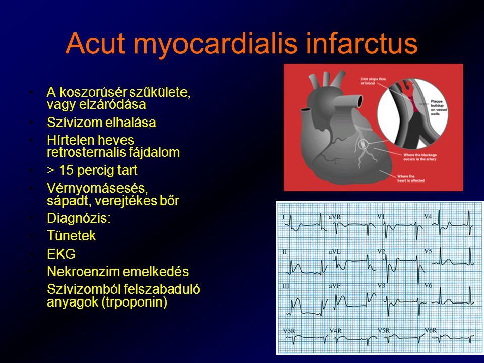 Acut myocardialis infarctus A koszorúsér szűkülete, vagy elzáródása Szívizom elhalása Hírtelen heves retrosternalis fájdalom > 15 percig tart Vérnyomásesés, sápadt, verejtékes bőr Diagnózis: Tünetek EKG Nekroenzim emelkedés Szívizomból felszabaduló anyagok (trpoponin)