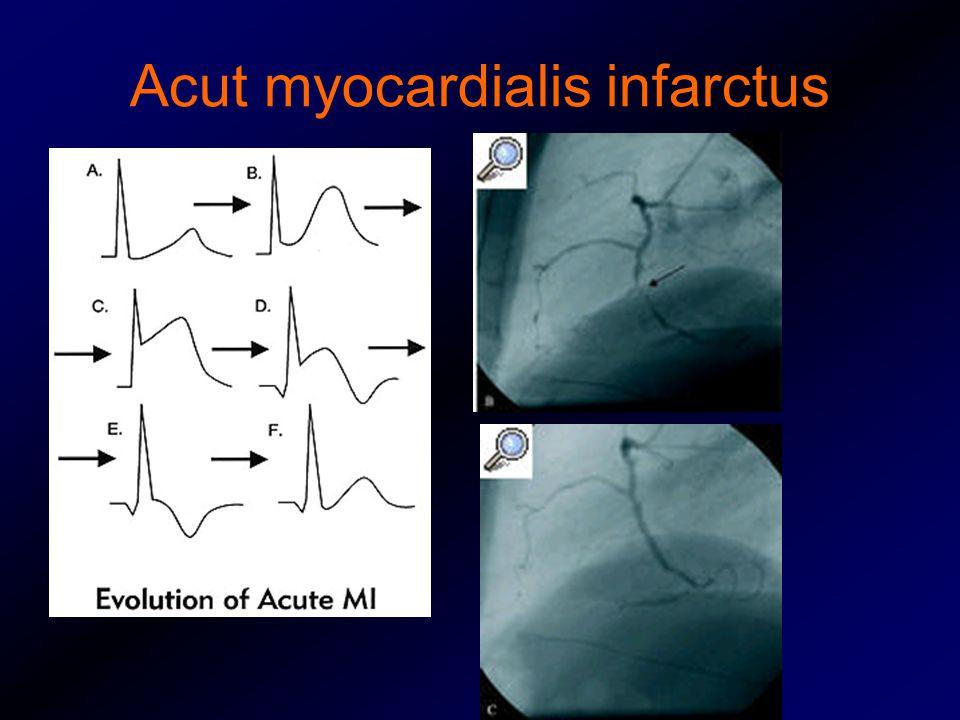 Acut myocardialis infarctus