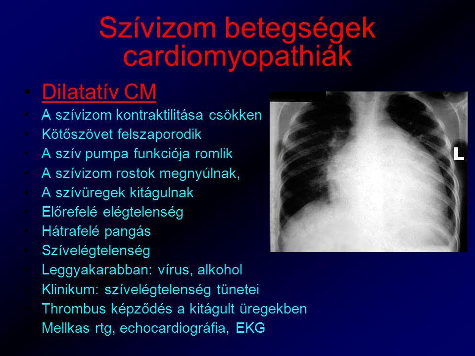 Szívizom betegségek cardiomyopathiák Dilatatív CM A szívizom kontraktilitása csökken Kötőszövet felszaporodik A szív pumpa funkciója romlik A szívizom rostok megnyúlnak, A szívüregek kitágulnak Előrefelé elégtelenség Hátrafelé pangás Szívelégtelenség Leggyakarabban: vírus, alkohol Klinikum: szívelégtelenség tünetei Thrombus képződés a kitágult üregekben Mellkas rtg, echocardiográfia, EKG