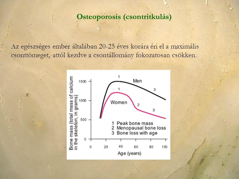 Az egészséges ember általában 20-25 éves korára éri el a maximális csonttömeget, attól kezdve a csontállomány fokozatosan csökken. Osteoporosis (csont