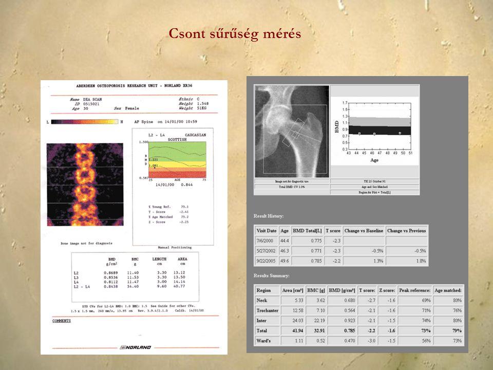 Csont sűrűség mérés