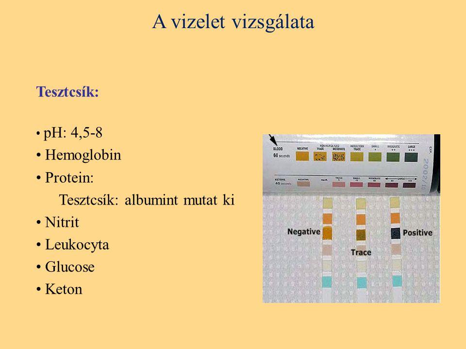 Tesztcsík: pH: 4,5-8 Hemoglobin Protein: Tesztcsík: albumint mutat ki Nitrit Leukocyta Glucose Keton
