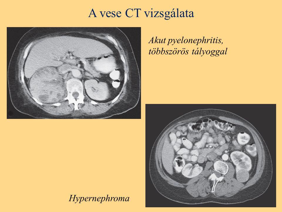 A vese CT vizsgálata Hypernephroma Akut pyelonephritis, többszörös tályoggal