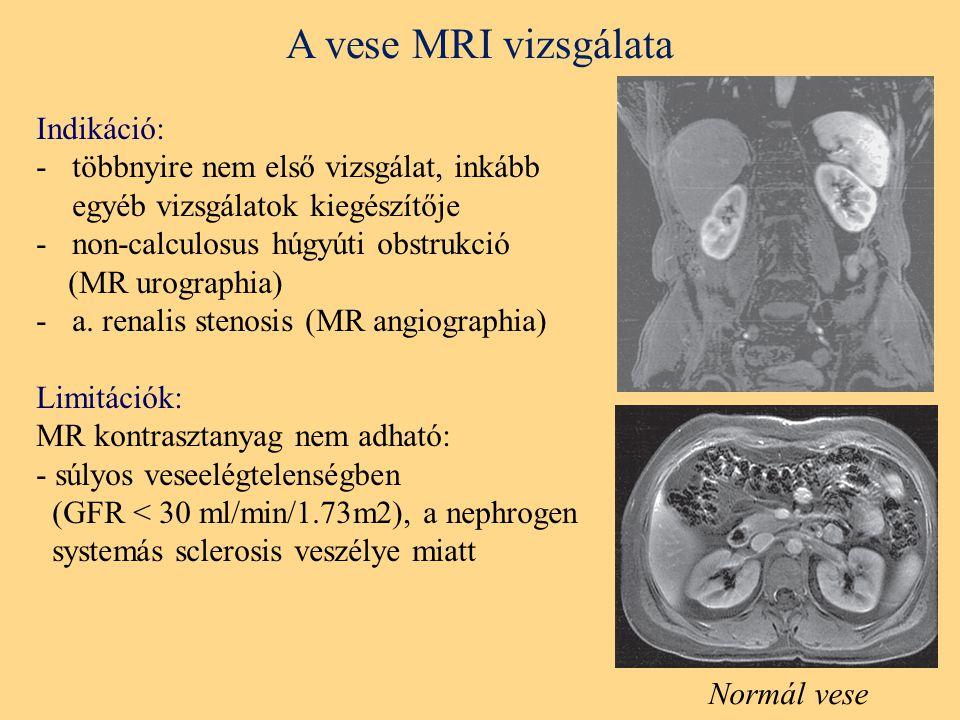 A vese MRI vizsgálata Indikáció: -többnyire nem első vizsgálat, inkább egyéb vizsgálatok kiegészítője -non-calculosus húgyúti obstrukció (MR urographia) -a.