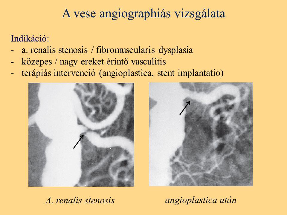 A vese angiographiás vizsgálata Indikáció: -a.