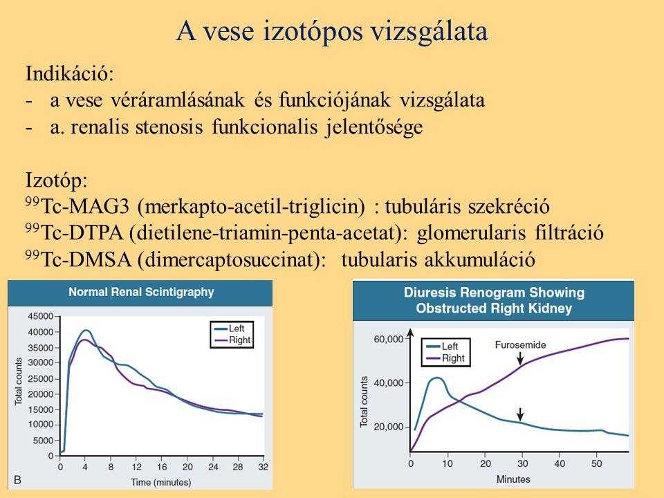 A vese izotópos vizsgálata Indikáció: -a vese véráramlásának és funkciójának vizsgálata -a.