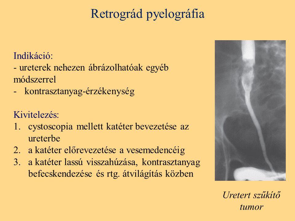 Retrográd pyelográfia Indikáció: - ureterek nehezen ábrázolhatóak egyéb módszerrel -kontrasztanyag-érzékenység Kivitelezés: 1.cystoscopia mellett katéter bevezetése az ureterbe 2.a katéter előrevezetése a vesemedencéig 3.a katéter lassú visszahúzása, kontrasztanyag befecskendezése és rtg.