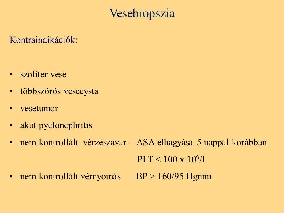 Vesebiopszia Kontraindikációk: szoliter vese többszörös vesecysta vesetumor akut pyelonephritis nem kontrollált vérzészavar – ASA elhagyása 5 nappal korábban – PLT < 100 x 10 9 /l nem kontrollált vérnyomás – BP > 160/95 Hgmm