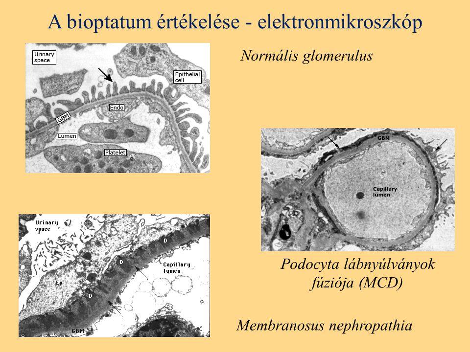 A bioptatum értékelése - elektronmikroszkóp Normális glomerulus Podocyta lábnyúlványok fúziója (MCD) Membranosus nephropathia