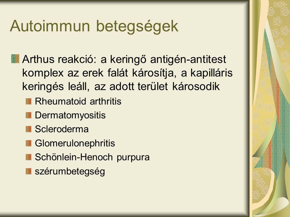 Autoimmun betegségek Arthus reakció: a keringő antigén-antitest komplex az erek falát károsítja, a kapilláris keringés leáll, az adott terület károsodik Rheumatoid arthritis Dermatomyositis Scleroderma Glomerulonephritis Schönlein-Henoch purpura szérumbetegség