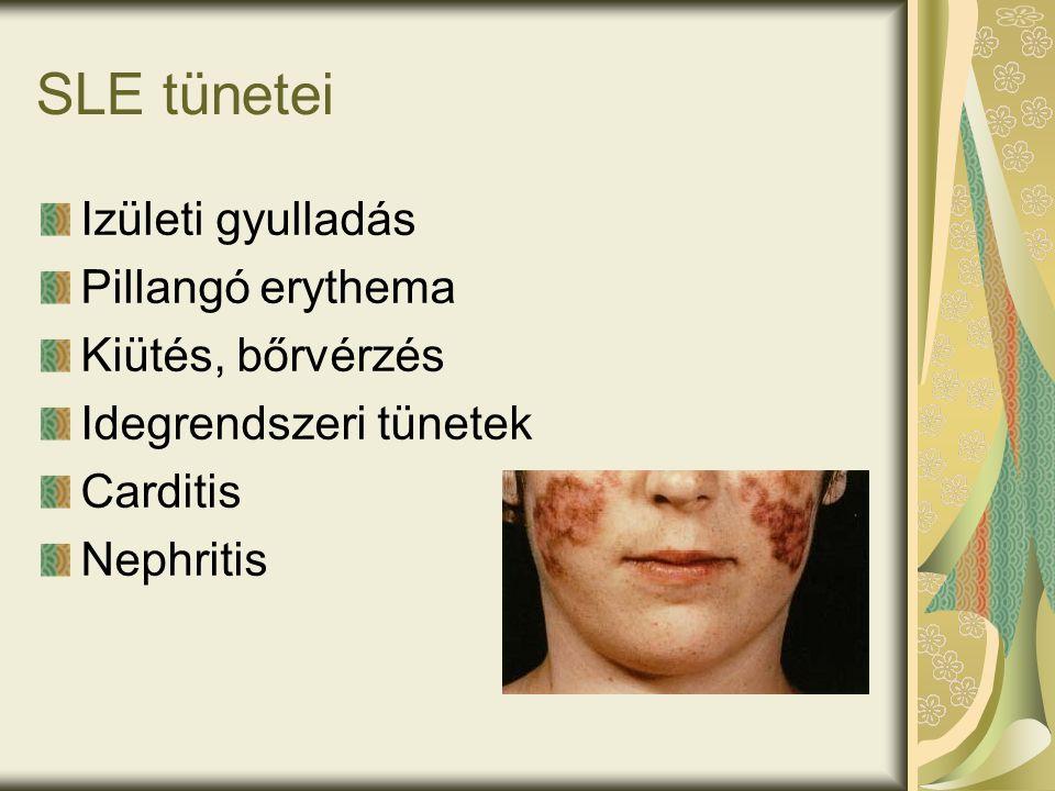 SLE tünetei Izületi gyulladás Pillangó erythema Kiütés, bőrvérzés Idegrendszeri tünetek Carditis Nephritis