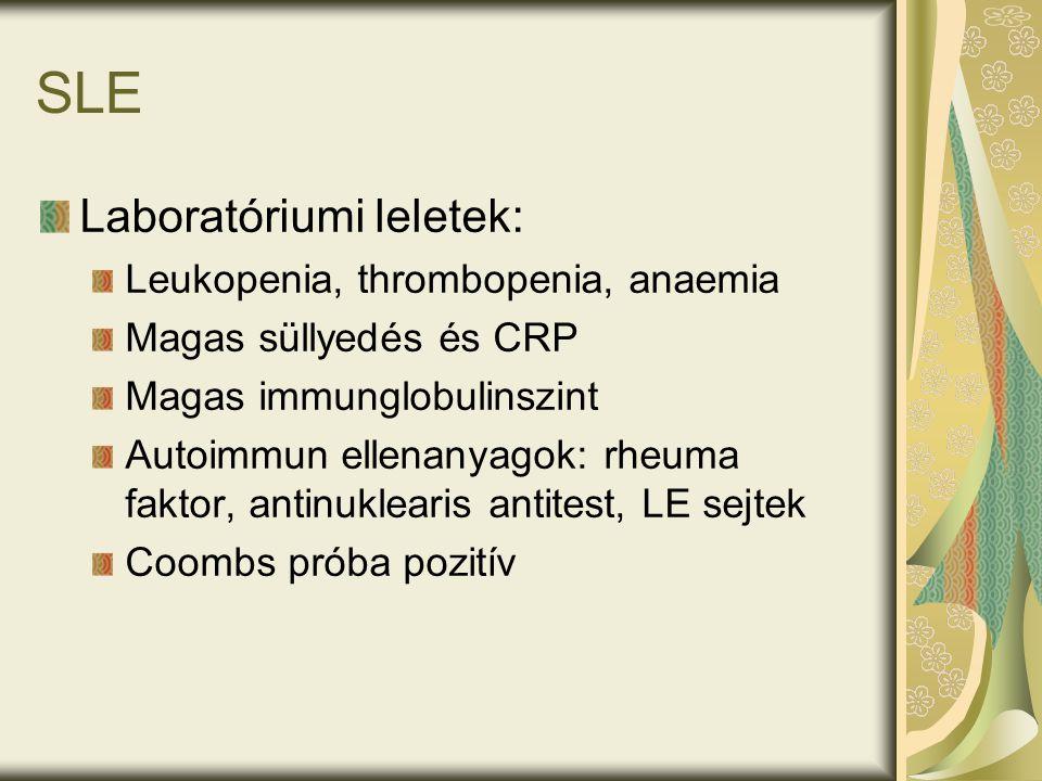 Laboratóriumi leletek: Leukopenia, thrombopenia, anaemia Magas süllyedés és CRP Magas immunglobulinszint Autoimmun ellenanyagok: rheuma faktor, antinuklearis antitest, LE sejtek Coombs próba pozitív