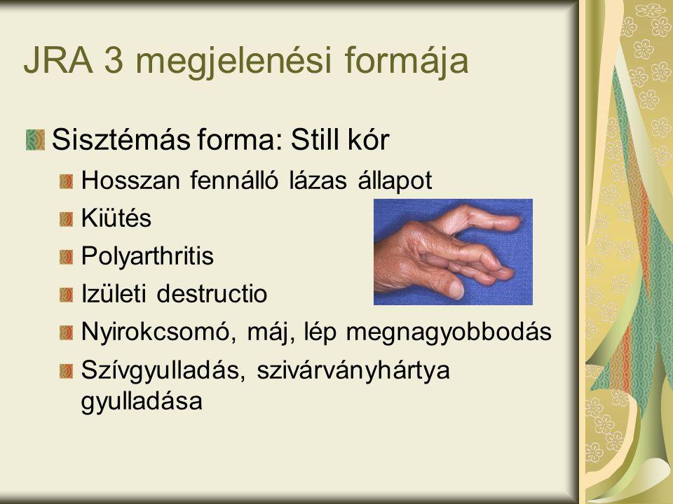 JRA 3 megjelenési formája Sisztémás forma: Still kór Hosszan fennálló lázas állapot Kiütés Polyarthritis Izületi destructio Nyirokcsomó, máj, lép megnagyobbodás Szívgyulladás, szivárványhártya gyulladása