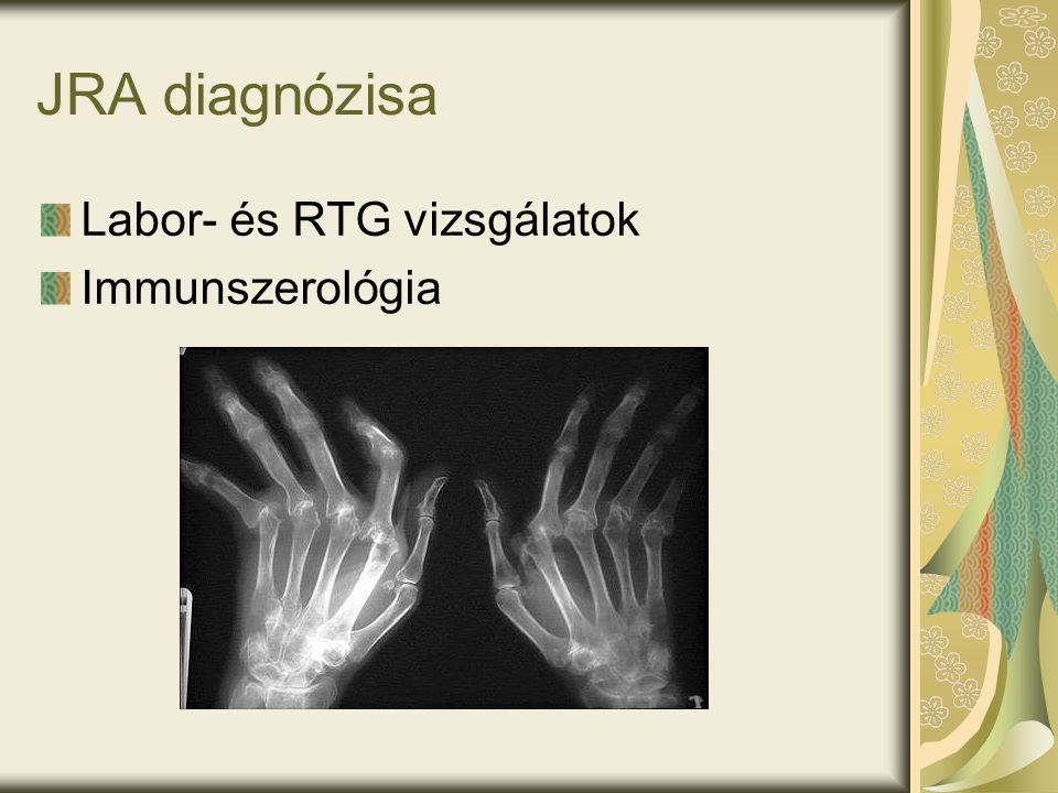 JRA diagnózisa Labor- és RTG vizsgálatok Immunszerológia