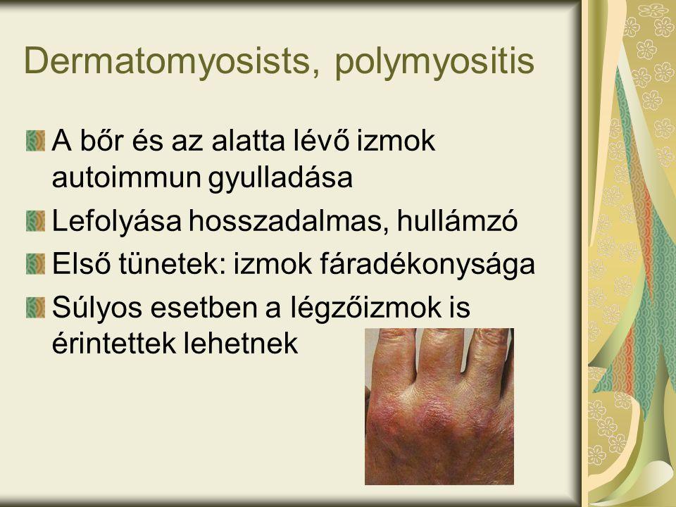 Dermatomyosists, polymyositis A bőr és az alatta lévő izmok autoimmun gyulladása Lefolyása hosszadalmas, hullámzó Első tünetek: izmok fáradékonysága Súlyos esetben a légzőizmok is érintettek lehetnek