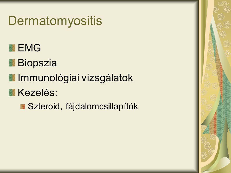Dermatomyositis EMG Biopszia Immunológiai vizsgálatok Kezelés: Szteroid, fájdalomcsillapítók