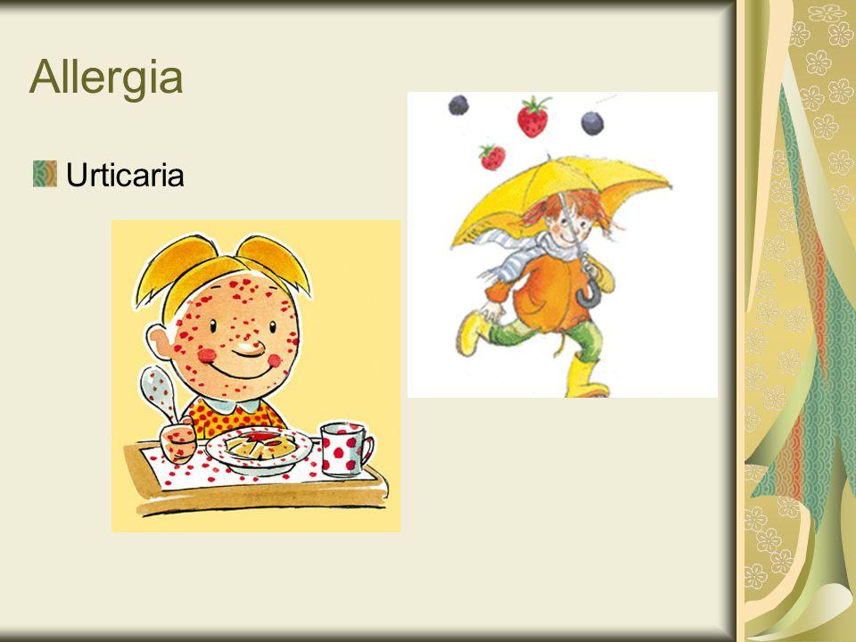 Allergia Urticaria
