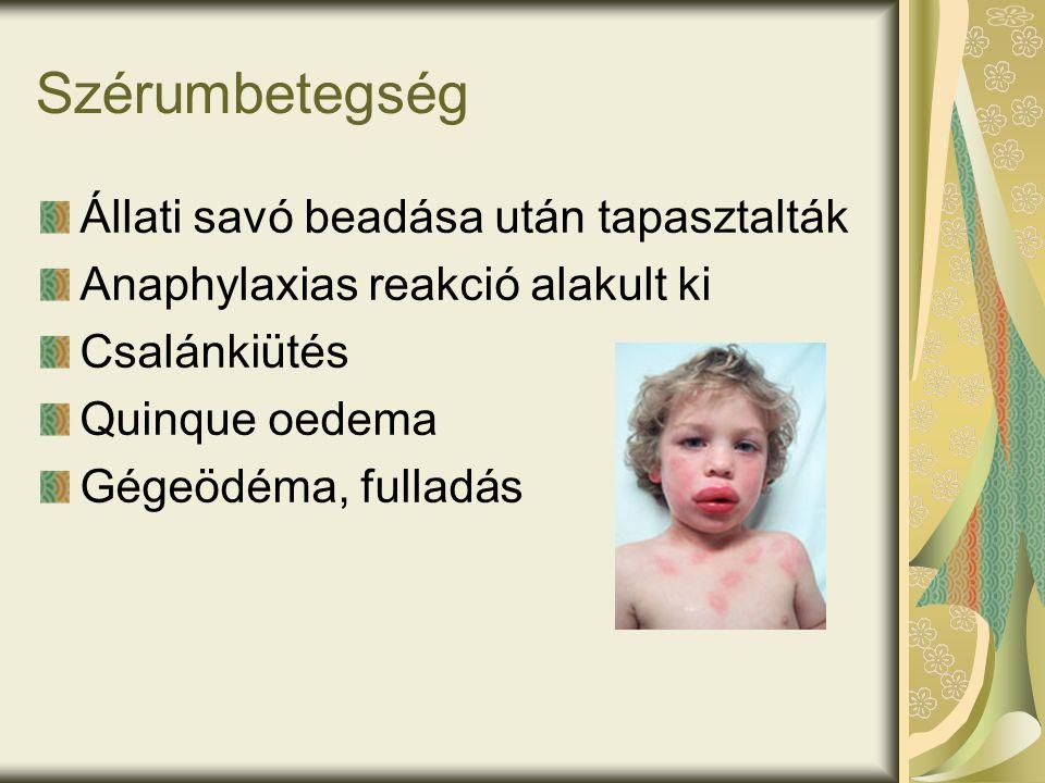 Szérumbetegség Állati savó beadása után tapasztalták Anaphylaxias reakció alakult ki Csalánkiütés Quinque oedema Gégeödéma, fulladás
