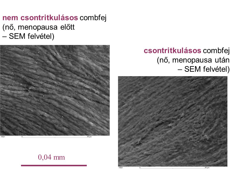 nem csontritkulásos combfej (nő, menopausa előtt – SEM felvétel) csontritkulásos combfej (nő, menopausa után – SEM felvétel) 0,04 mm