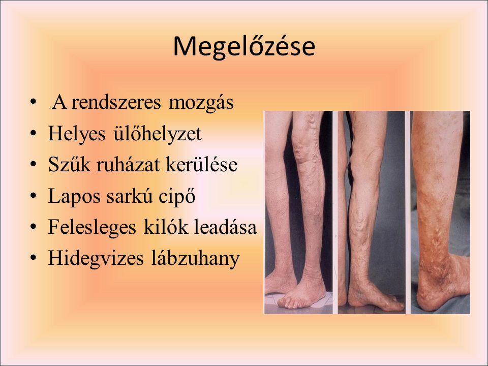 Megelőzése A rendszeres mozgás Helyes ülőhelyzet Szűk ruházat kerülése Lapos sarkú cipő Felesleges kilók leadása Hidegvizes lábzuhany