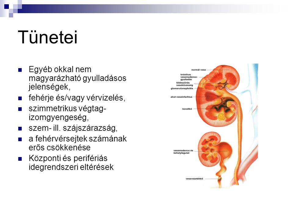 Tünetei Egyéb okkal nem magyarázható gyulladásos jelenségek, fehérje és/vagy vérvizelés, szimmetrikus végtag- izomgyengeség, szem- ill. szájszárazság,