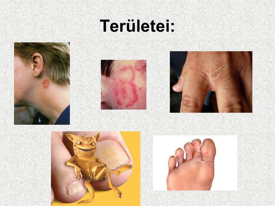 Megelőzés- Kezelés Megelőzés: Az ujjak közét és a hajlatokat mindig szárazon kell tartani Kezelés: A már kialakult gombásodást mindig kezelni kell,általában 8 hétig tart a fertőzés elmúlása,de utókezelés is szükséges,hogy a gombák a mélyebb rétegekben is elpusztuljanak.