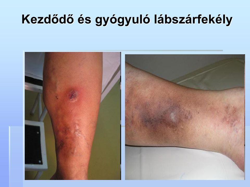 Kezdődő és gyógyuló lábszárfekély