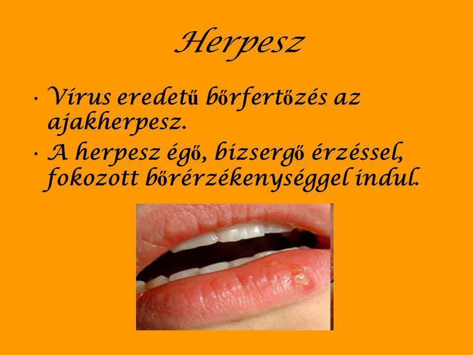 Herpesz Vírus eredet ű b ő rfert ő zés az ajakherpesz. A herpesz ég ő, bizserg ő érzéssel, fokozott b ő rérzékenységgel indul.