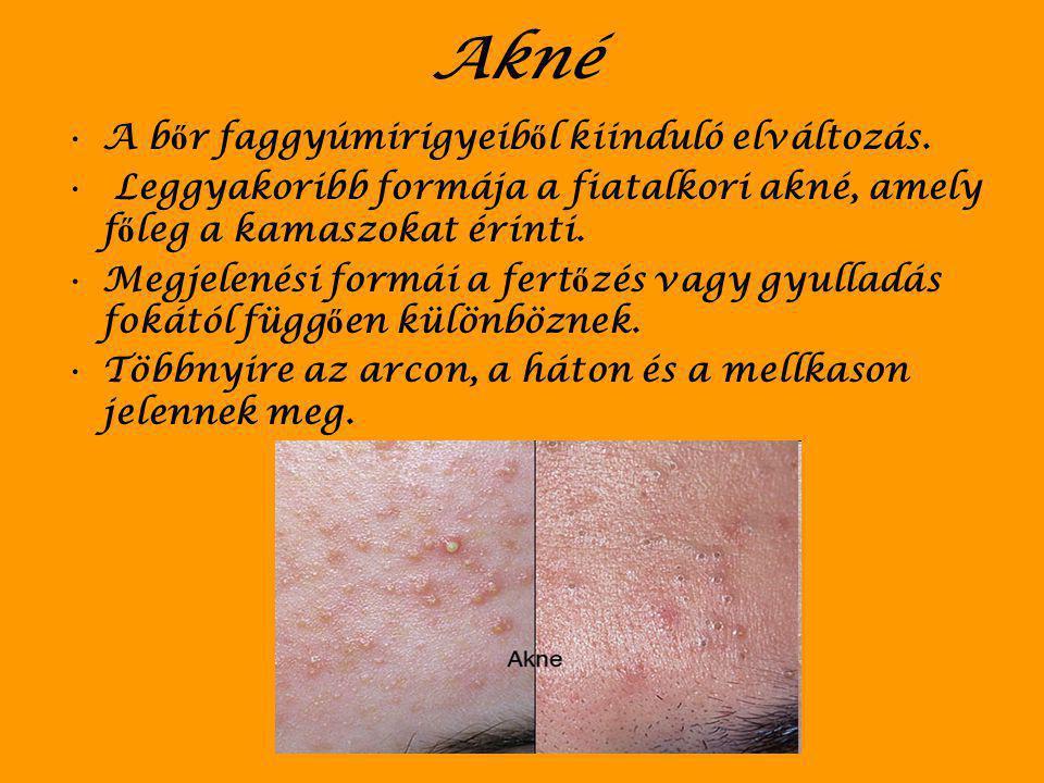 A b ő r betegségei Gyulladás –Gyulladással járhatnak például a baktérium- fert ő zések, jellemz ő a gyulladás a pikkelysömörre, az allergiás betegségekre.