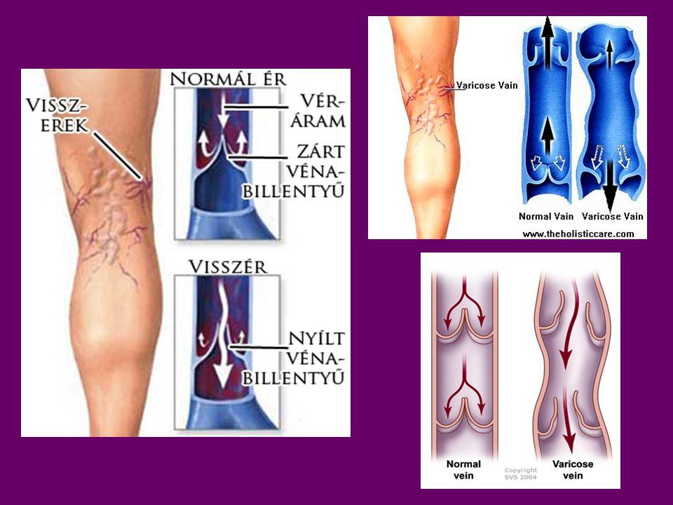  Az egynapos sebészet azt jelenti, hogy a beteg, a műtétet követő 24 órán belül, többnyire pár órás megfigyelés után a saját lábán, kísérővel hagyja el az operáló intézetet, és a gyógyulás saját otthonában történik.