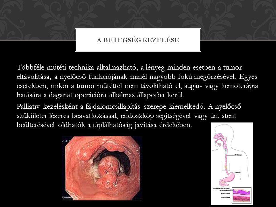 A gyomorfekély a gyomor nyálkahártya folytonosságának megszakadása legalább 5 mm kiterjedésű területen.