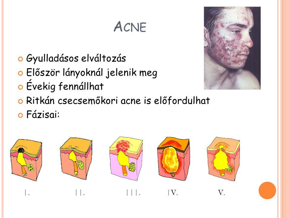 A CNE Gyulladásos elváltozás Először lányoknál jelenik meg Évekig fennállhat Ritkán csecsemőkori acne is előfordulhat Fázisai: |. ||. |||. |V. V.