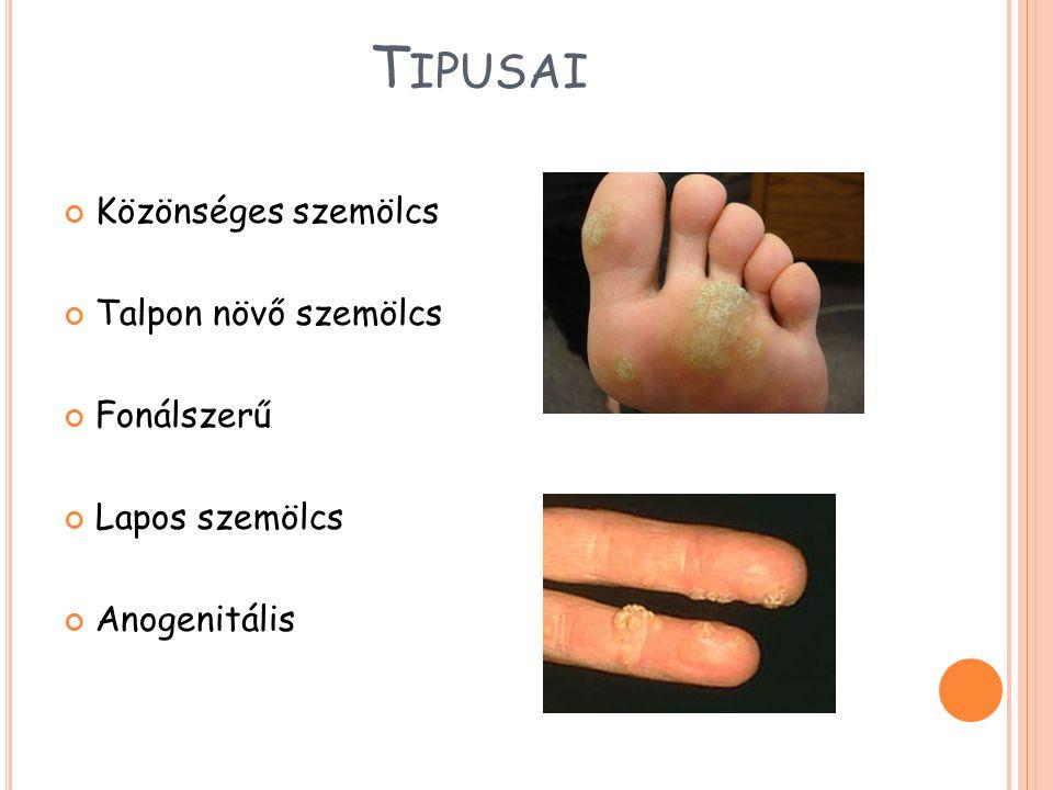 T IPUSAI Közönséges szemölcs Talpon növő szemölcs Fonálszerű Lapos szemölcs Anogenitális