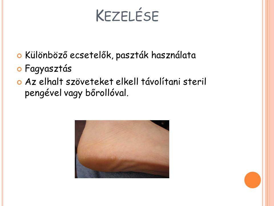 K EZELÉSE Különböző ecsetelők, paszták használata Fagyasztás Az elhalt szöveteket elkell távolítani steril pengével vagy bőrollóval.