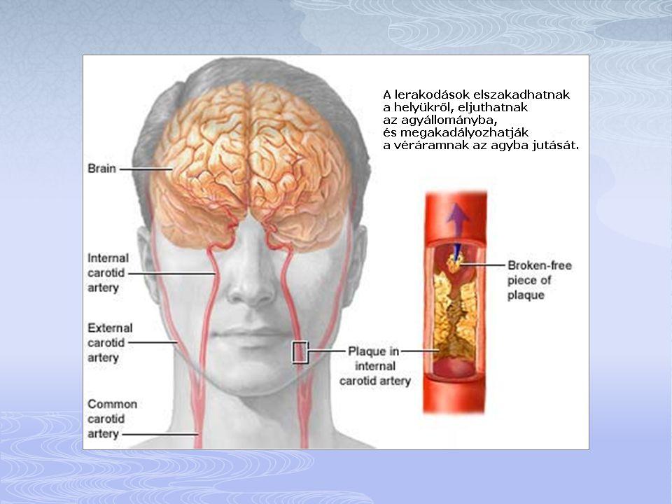  Az arc, a kar, vagy a láb általában egy oldalon fellépő hirtelen érzéketlensége, gyengesége, vagy bénulása.