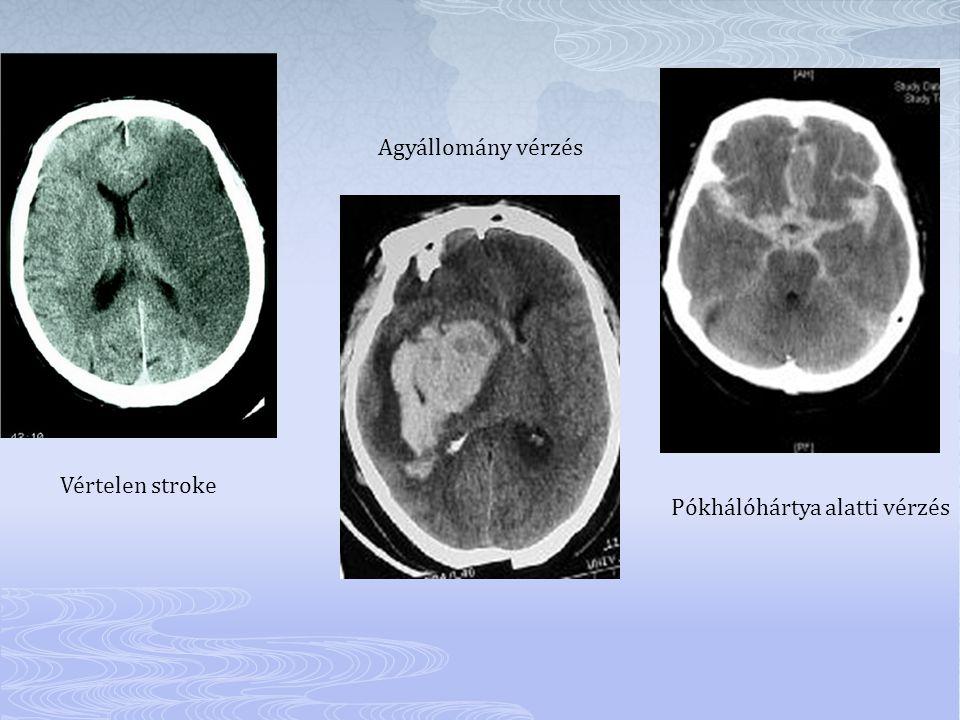 Pókhálóhártya alatti vérzés Agyállomány vérzés Vértelen stroke