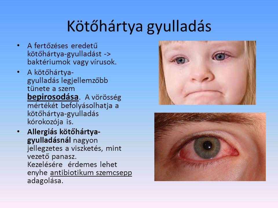 A kancsalság más néven szemtengelyferdülés Többnyire gyerekkorban kezdődő szembetegség, két szem nem tud ugyanoda nézni, ezért nem jön létre kétszemes látás.