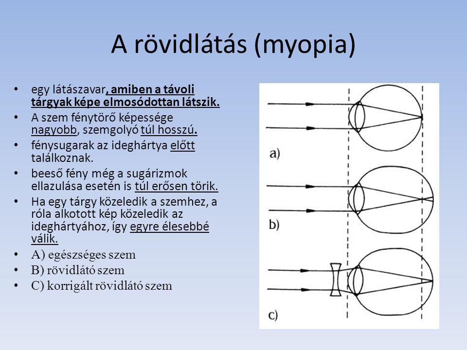 A távollátás (hypermetropia) a fény nem a retina síkjában, hanem a mögött fókuszálódna, tehát a kép elmosódik.