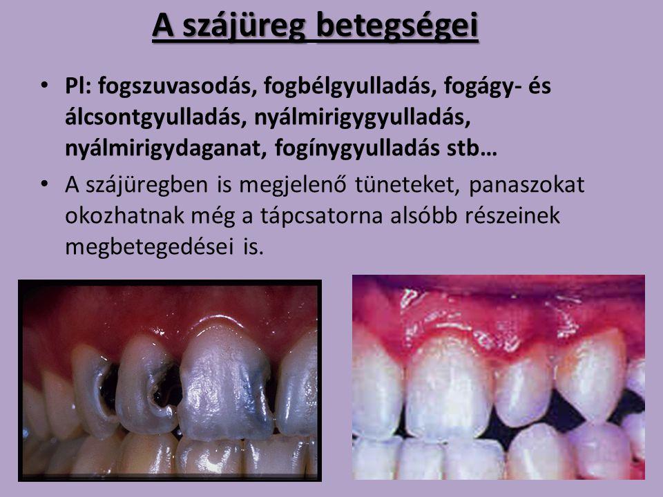 A szájüregbetegségei A szájüreg betegségei Pl: fogszuvasodás, fogbélgyulladás, fogágy- és álcsontgyulladás, nyálmirigygyulladás, nyálmirigydaganat, fo