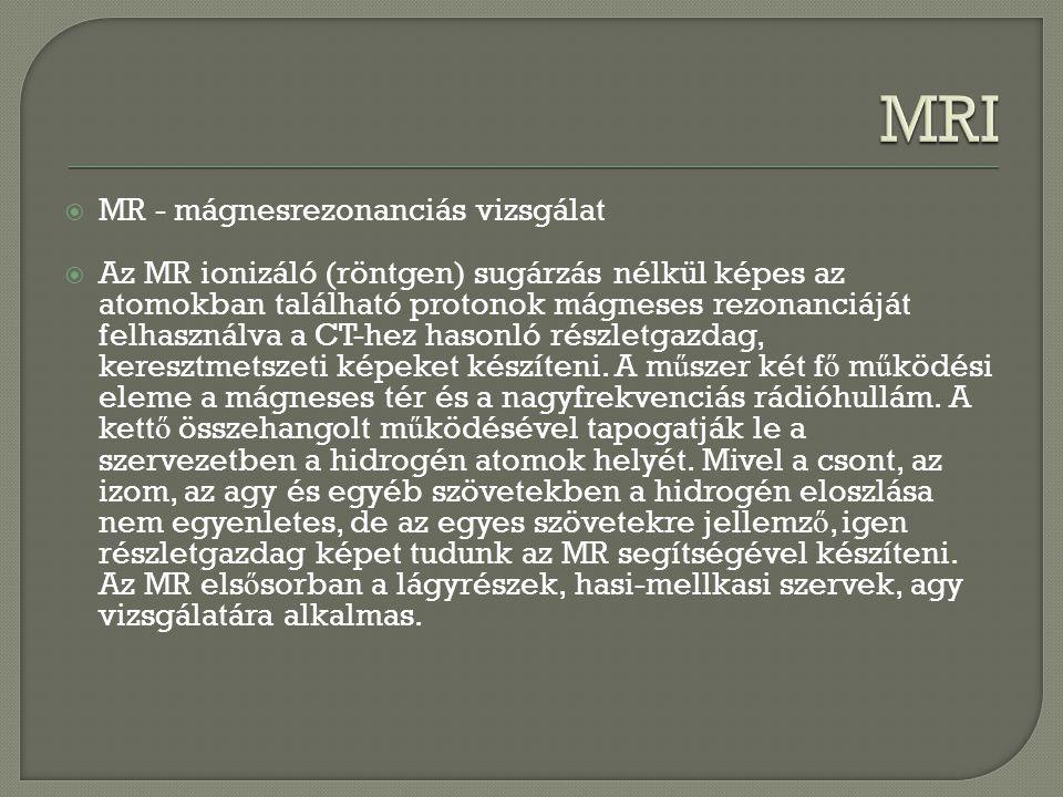  MR - mágnesrezonanciás vizsgálat  Az MR ionizáló (röntgen) sugárzás nélkül képes az atomokban található protonok mágneses rezonanciáját felhasználv
