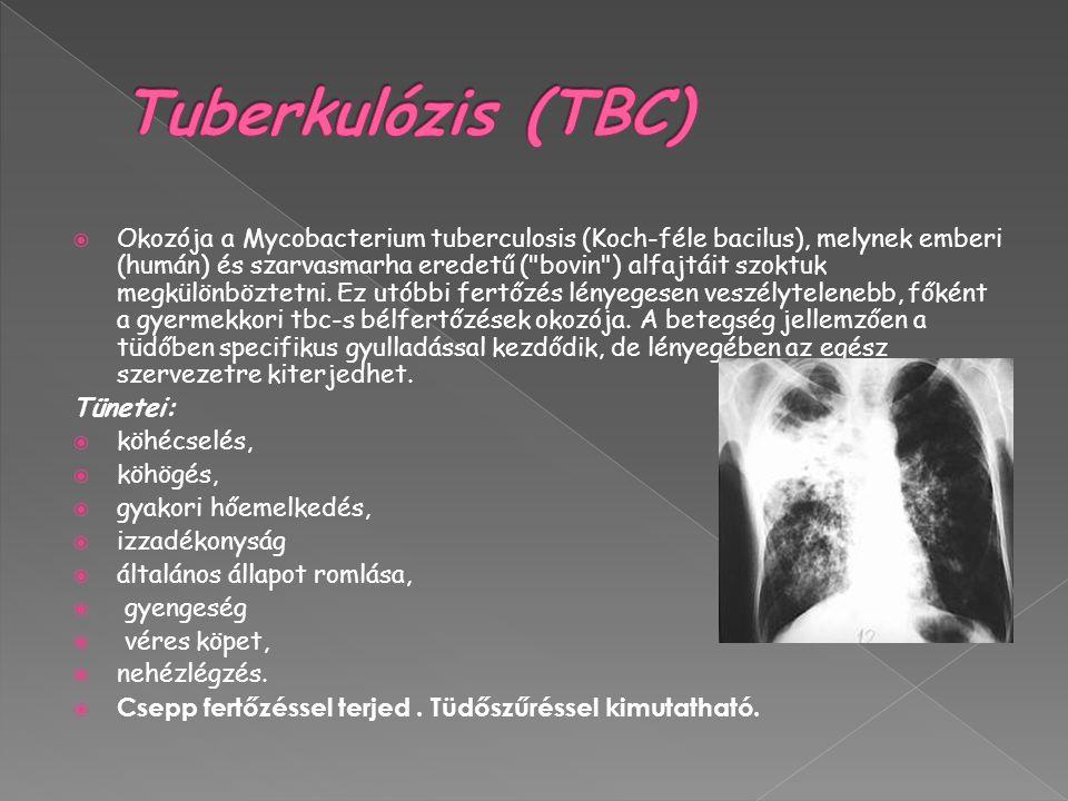  Okozója a Mycobacterium tuberculosis (Koch-féle bacilus), melynek emberi (humán) és szarvasmarha eredetű ( bovin ) alfajtáit szoktuk megkülönböztetni.